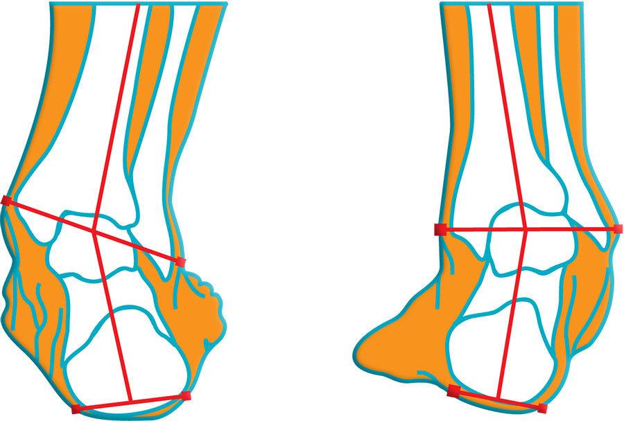 a könyökízületek helyreállítása sérülés után a lábak ízületeiben a fájdalom nem szűnik meg