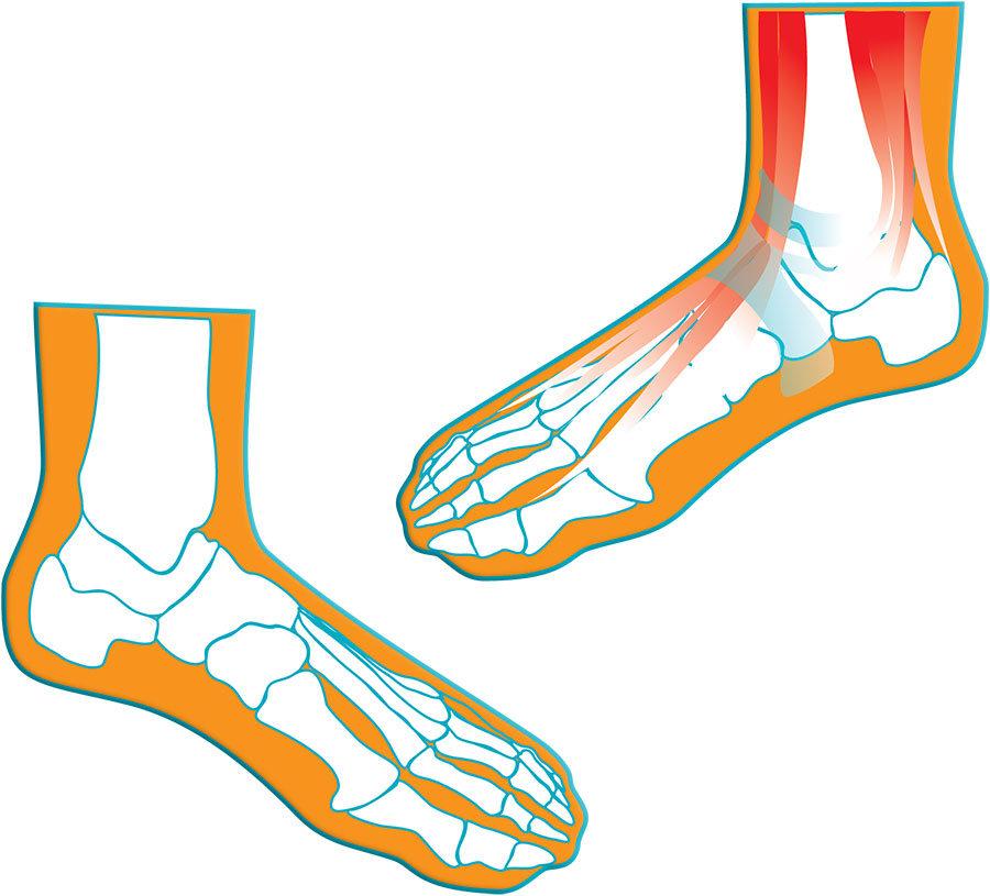 lefogyhat a láb súlya lépés cél fogyás
